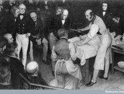 Robert Liston, Dokter Bedah Dengan Angka Kematian 300 Persen